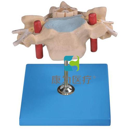 """""""康为医疗""""颈椎附脊髓和脊神经放大模型"""
