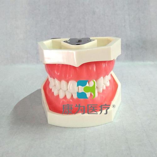 """""""康为医疗""""标准模型(28颗螺钉固定牙齿)"""