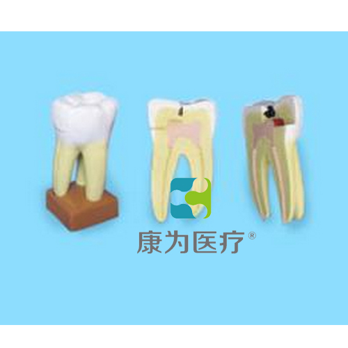 """""""康为医疗""""上颌三根龋齿模型(放大)"""