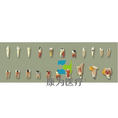 """""""康为医疗""""牙齿病理系列模型"""