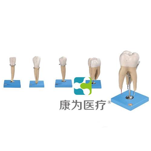 """""""康为医疗""""牙放大模型"""