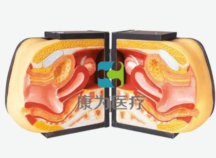 【康为医疗】高级女性避孕器指导模型