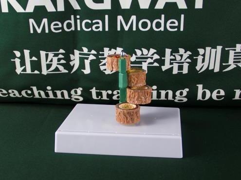 """""""康为医疗""""粥样化血管模型"""
