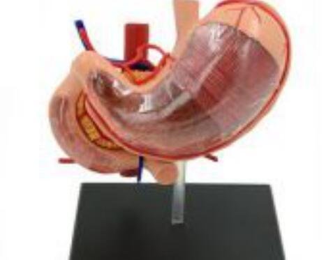 """""""康为医疗""""人体胃解剖模型"""