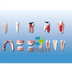 """""""康为医疗""""牙齿病变系列模型"""