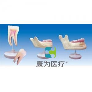 """""""康为医疗""""磨牙、乳牙、横牙解剖(自然大)"""